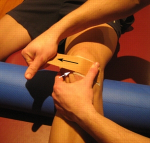 patellar taping