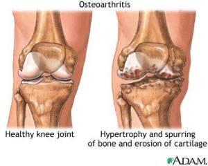 OA lutut